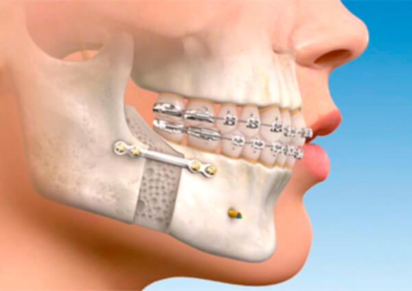 apollo-cirurgia-ortognatica-exemplo